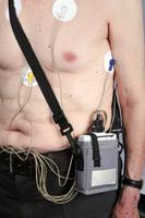 Heart Rhythm Monitoring