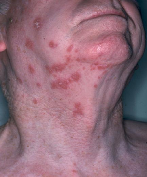 Here S Why You Should Avoid The Shingles Vaccine